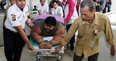 Dokter Tak Mungkin Lakukan Operasi Sedot Lemak pada Arya Permana