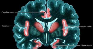 Perbedaan Perubahan Otak Laki-laki dan Perempuan Saat Stres