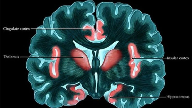 Insula Pada Otak